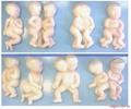 胎兒畸形模型