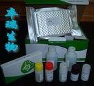猪乙酰胆碱受体抗体(AChRab)Elisa试剂盒
