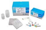 人组氨酰tRNA合成酶(Jo-1)酶联免疫分析(ELISA)试剂盒