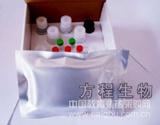 北京人乙型肝炎病毒前S2抗原(HBV preS2Ag)ELISA Kit