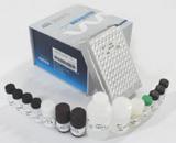 人抗存活素抗体/生存蛋白(Surv)ELISA试剂盒