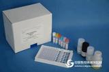 人αN已酰氨基葡糖苷酶(αNAG)ELISA试剂盒操作步骤