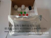 人抗BP180抗体(BP180-Ab)ELISA Kit