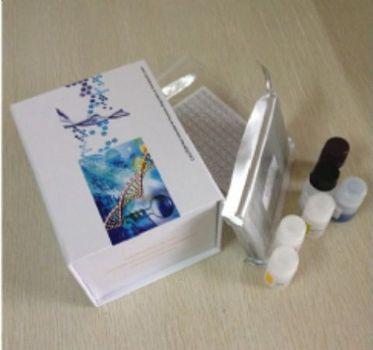 人白介素1β (IL-1β)ELISA试剂盒