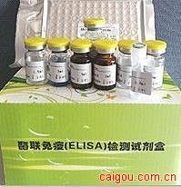 传染性单核细胞增多症IgG(IM IgG)ELISA试剂盒