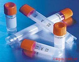 甲胎蛋白AlphaFetoprotein(AFP)