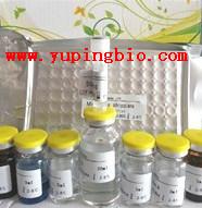 人磷脂酰肌醇抗体IgM(PI Ab-IgM)ELISA试剂盒