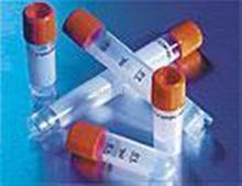 EFHC2蛋白抗体