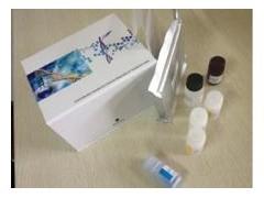 CPSA试剂盒,人复合前列腺特异性抗原ELISA试剂盒