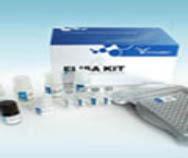 人CXC趋化因子受体4(CXCR4)ELISA Kit