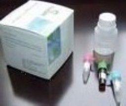 人皮肤T细胞虏获趋化因子(CTACK/CCL27)ELISA试剂盒