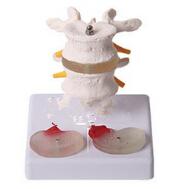 2节腰椎附2个病变椎间盘模型 wi114527