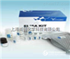 人醛糖还原酶(AR)ELISA Kit