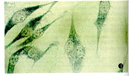 中科院细胞库供应 LX-2 人肝星形细胞株