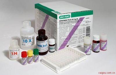 人肌酸激酶同工酶MB ELISA试剂盒