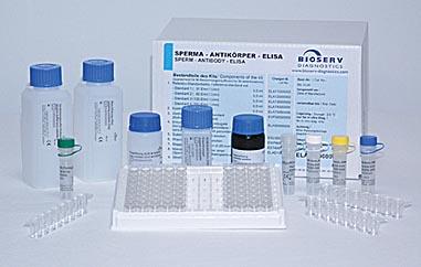 小鼠卵清蛋白特异性IgE试剂盒/小鼠OVA sIgE ELISA试剂盒
