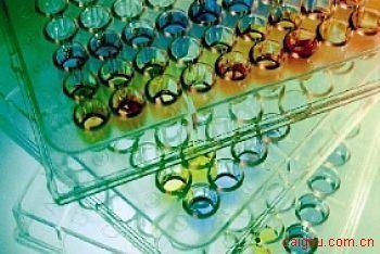 人皮质酮/肾上腺酮Elisa试剂盒,CORT试剂盒