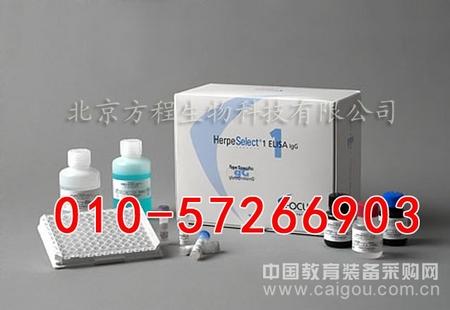 进口人凝血因子Ⅷ相关抗原 ELISA代测/人Ⅷ-Ag ELISA试剂盒价格