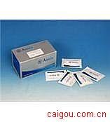 人TSP-1,血小板反应蛋白/凝血酶敏感蛋白1Elisa试剂盒