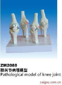 膝关节病理模型