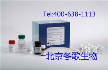 大鼠组织多肽抗原试剂盒,大鼠(TPA)Elisa试剂盒